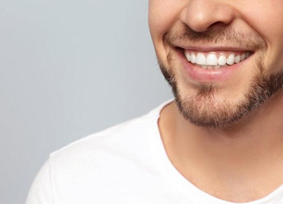 Facetas dentárias finais