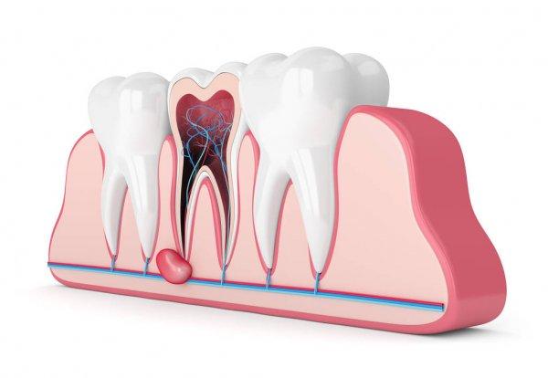 Cirurgia Oral - dentes